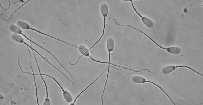 Pig sperm