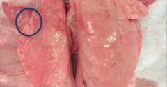 Lungs displaying symptoms of Mycoplasma pneumonia